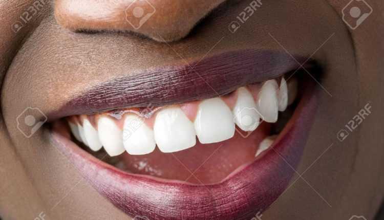 quelques astuces: dents blanches